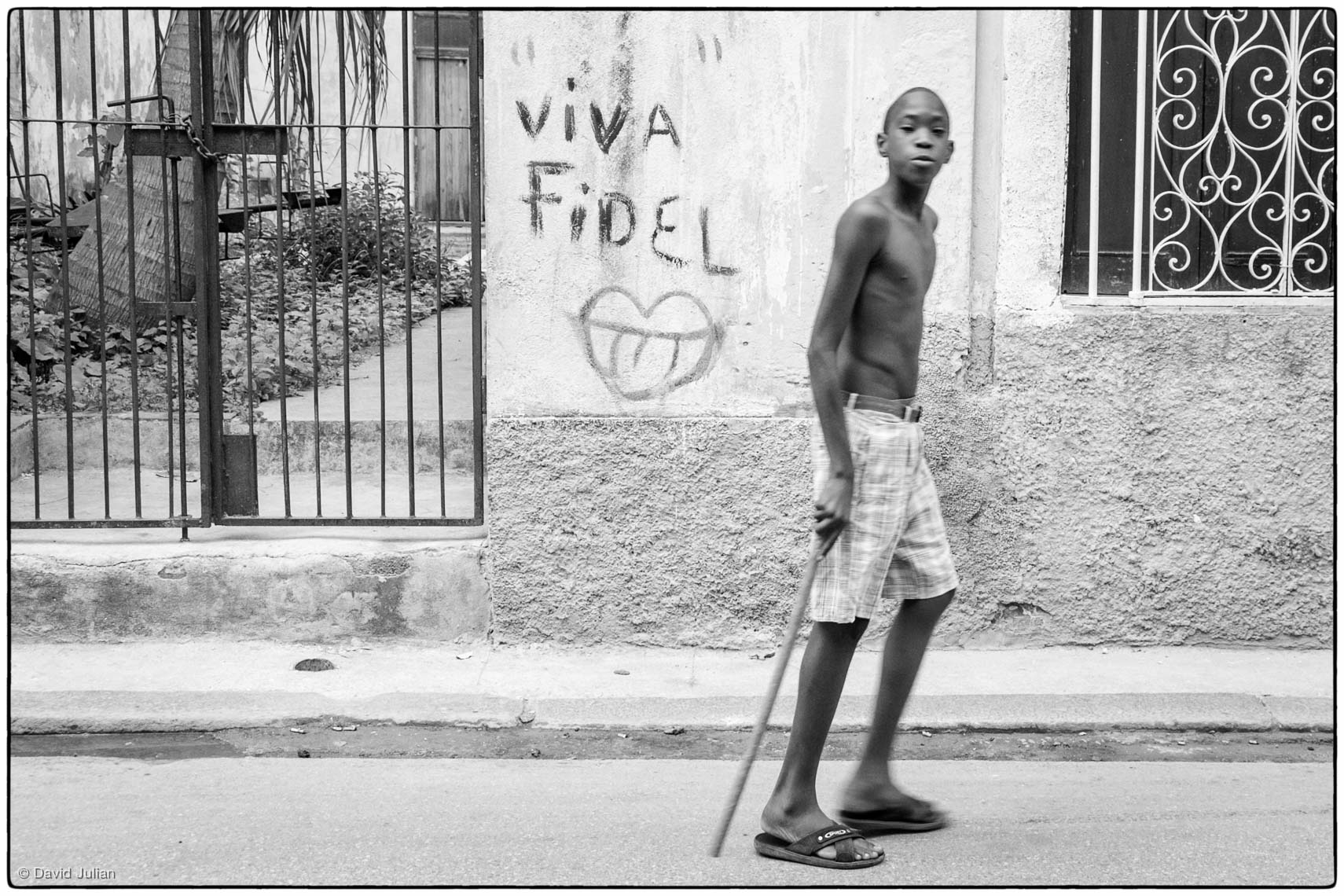 25_Cuba_Havana-injured-boy-5754